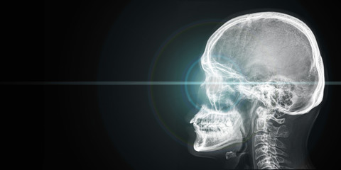 x ray of human head with light from eye
