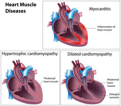 Diseases of heart muscle