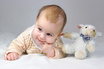 Drei Monate altes Baby mit Milchschorf liegt mit Plüschtier auf der Decke