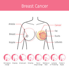 Illustration Of Female Human Breast, Outline And Breast Cancer Symptom Icons, Mammary, Boob, Body, Organs, Physical, Sickness, Health