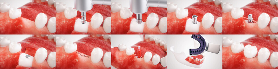 Dental implant operation - 3D rendering  In this sequence of an implant operation you will see all the steps for using a dental implant. The pictures was created with the greatest possible care.