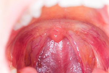 tonsilitis infection throat.macro opened mouth  throat  tonsil