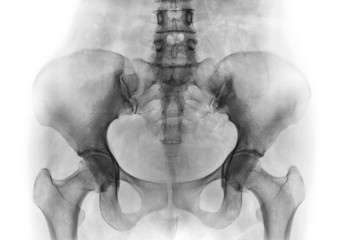 Film x-ray of normal human pelvis and hip joints