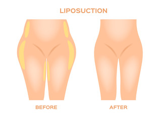 Liposuction before and after vector