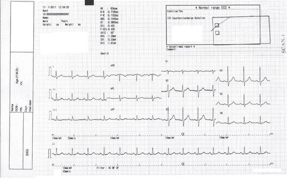 EKG, ecg graph, Electrocardiogram ecg on paper