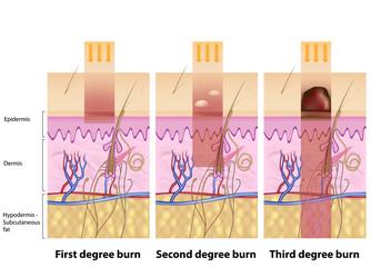 Skin burns degrees