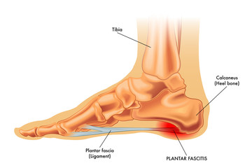 Vector medical illustration of symptoms of plantar fascitis
