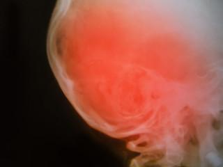 Skull X-Ray of human medical concept.