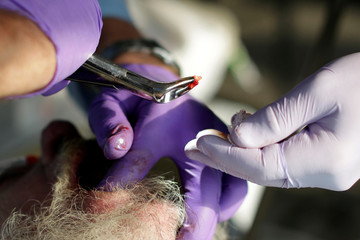 A dentist extracts the root of a tooth at the Remote Area Medical Clinic in Wise, Virginia