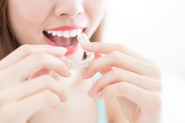 woman take invisible braces