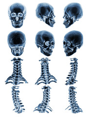 CT scan ( Computed tomography ) with 3D graphic show normal human skull and cervical spine