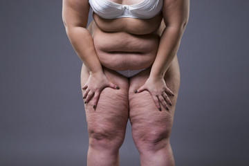 Overweight woman with fat legs, obesity female body