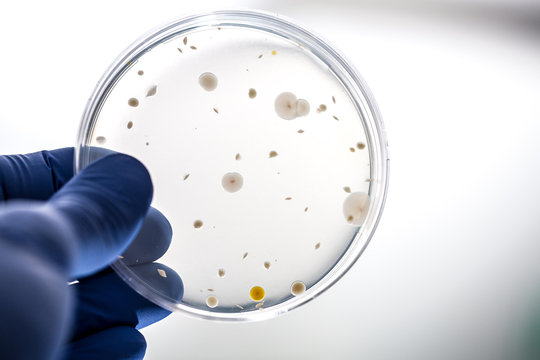 Scientist holding bacteria culture on agar