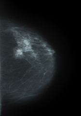 a Mammography picture - x-ray of Breast
