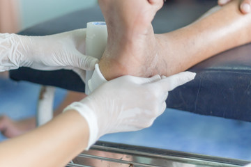 diabetes ulcers,treatment infected wound of diabetic foot