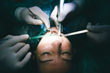 Hands of dentists during a dental intervention