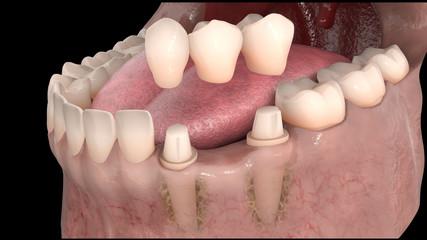 Dental anatomy - Lower teeth dental bridge with bone structure, teeth and gum section