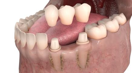 Dental anatomy - Lower teeth dental bridge with bone structure and  teeth