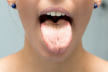 Candida albicans infection on tongue of woman