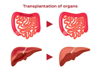 Transplantation of organ vector / liver and intestine
