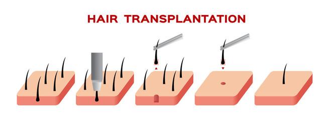 hair transplant vector