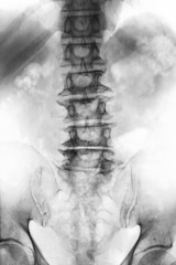 Spondylosis .  film x-ray lumbosacral spine of old aged patient show osteophyte , collapse spine from degenerative process . Front view