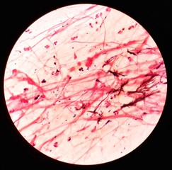 Smear of sputum specimen Gram's stained under 100X light microscope with moderate gram positive bacilli bacteria and few color sediment (Selective focus).
