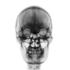 Film x-ray of normal human skull on isolated background . Front view