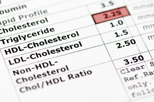 Blood chemistry report showing a lipid profile with high triglyceride levels.