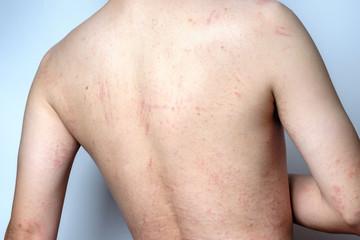 Man with dermatitis problem of rash