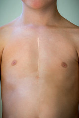 Front view of young caucasian boy with healed surgical scar after heart surgery.