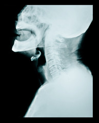 X ray of a neck.