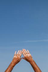 Hands with Vitiligo Skin Disease