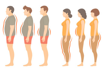 obesity woman and man body type, vector figure overweight