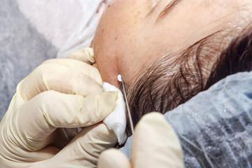 Dermatologist surgeon inserts polylactic acid filaments to perform facial lifting - Selective focus