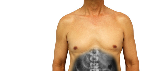 Colon cancer and Small intestine obstruction . Human abdomen with x-ray show small bowel dilated due to obstructed . Isolated background . Blank area at left side