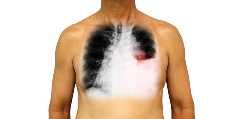 Lung cancer . Human chest and x-ray show pleural effusion left lung due to lung cancer