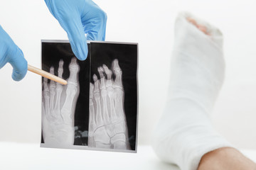 Doctor showing patient x-ray image of a broken finger,leg in plaster lying on the couch, on white