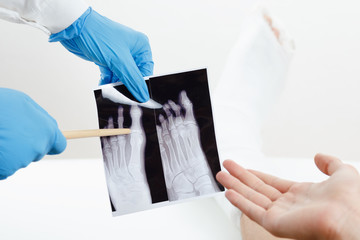 Doctor showing patient x-ray image of a broken finger leg in plaster