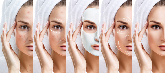 Woman step by step improves her skin condition.