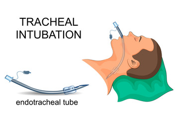 intubation of the trachea. artificial ventilation of the lungs