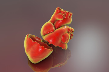 Realistic broken heart, separation and divorce concept, 3D illustration