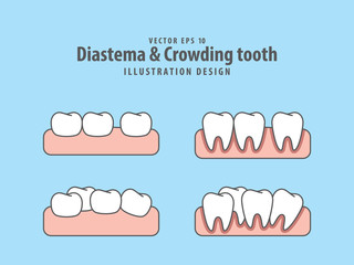 Diastema & Crowding tooth illustration vector on blue background. Dental concept.