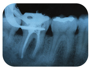 X-Ray Negative Tooth Endodontic