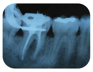 X-Ray Negative Tooth Endodontic