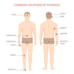 psoriasis illness diagram, human body skin disease