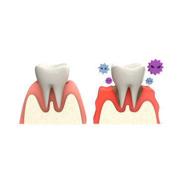 歯のインプラントと健康な歯茎