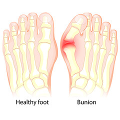 Bunion. Human anatomy. Skeleton