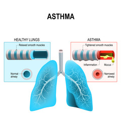 Asthma. Humans lungs and bronchi
