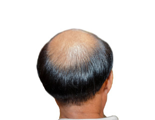 Bald image from the back No middle hair